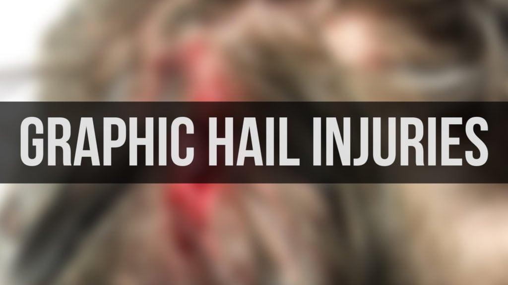 Graphic Hail Injuries