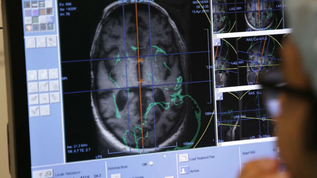 Your Healthy Family: Innovative clinical trial in fight against alzheimer's